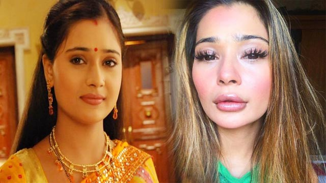 Actor Sara Khan's Plastic Surgery Gone Wrong