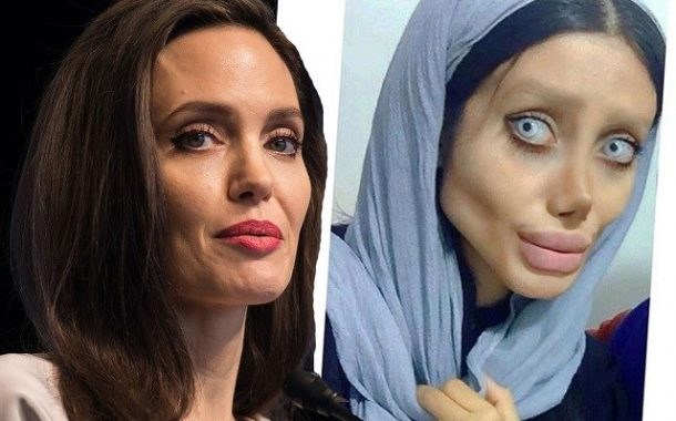 Story Of A Girl With 50 Surgeries To Look Like Angelina Jolie