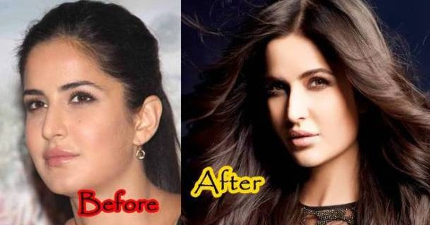 Which Top Bollywood Actresses Went For Breast Implant Treatment But Never Accepted?