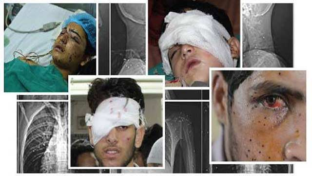 IOK: Hundreds Of Pellet Gun Victims Living With Depression