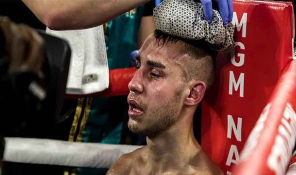 Russian Boxer Dies After Severe Boxing Injuries