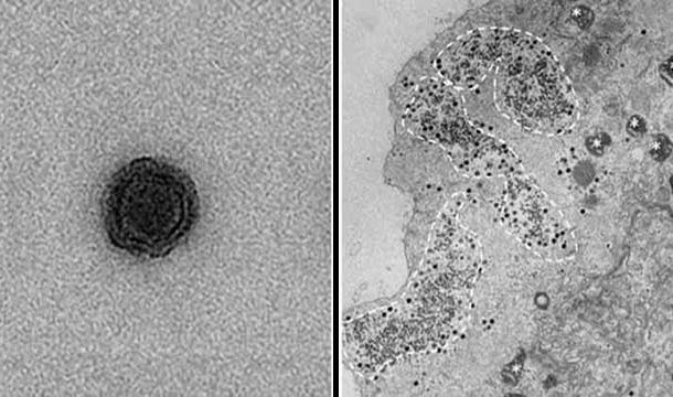 Scientists in Brazil Discovered Mysterious Viruses With No Known Genes