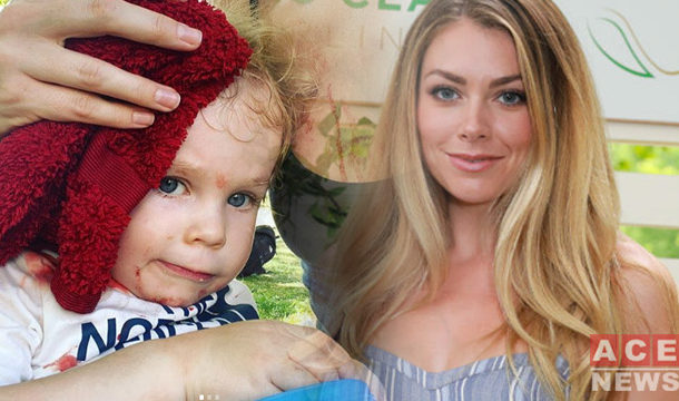 Former Miss England Reveals her Son's Bloody Injury After Accident
