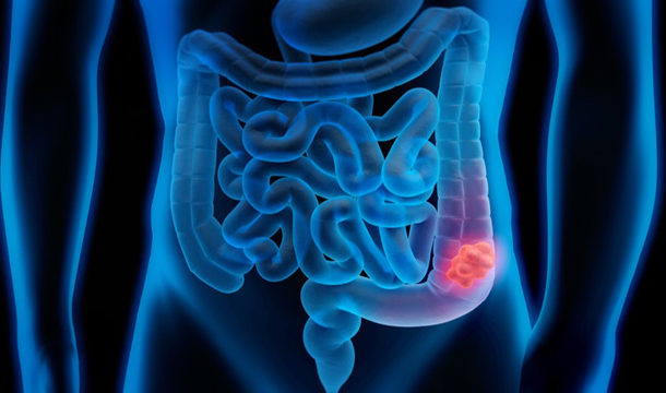 Significant Increase in Colon Cancer in People Under 50 Years of Age