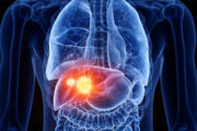 Spices Possess Cytotoxic Effects on Liver Cancer Cell Line (Hep G2)