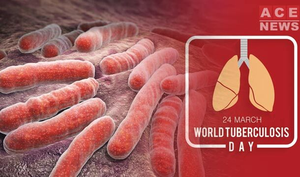 World TB Day: Tuberculosis Caused 1.4 Million Deaths in 2019